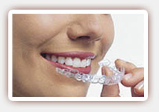 Differences between Braces and Invisalign